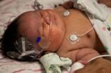 Il miracolo della bambina che torna dalla morte dopo il parto