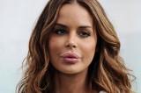 I disastri della chirurgia plastica tra le celebrità