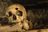 Cancro al seno, trovato scheletro di 4000 anni affetto dalla malattia