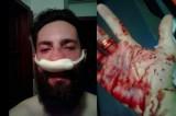 Picchiato Andrea Giuliano, l'attivista gay perseguitato a Budapest