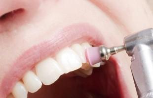 Come si forma la placca dentale e come si combatte?