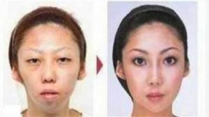 La moglie dell'imprenditore prima e dopo gli interventi estetici (www.ilmoderatore.it)