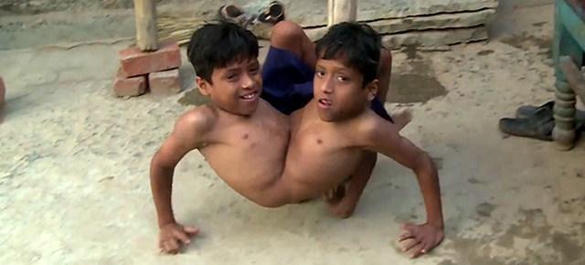 Shivanath e Shivram Sahu, gemelli siamesi nati in un paesino dell'India