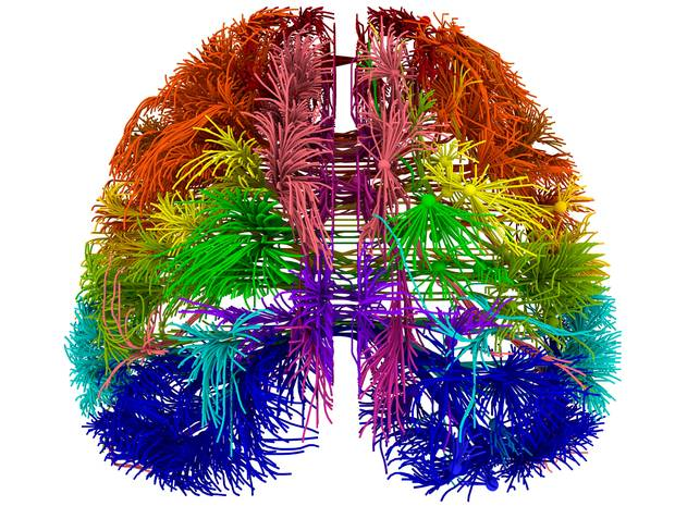 cervello artisti