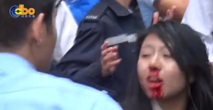 La ragazza condannata a tre mesi di carcere per aver aggredito il poliziotto col seno, appare col naso insanguinato (www.metro.co.uk)