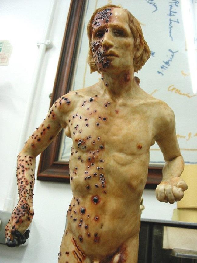 """La scultura """"Bubonic plague sculpture"""" dell'artista inglese Eleanor Cook, da cui il sito Centrometeoitaliano ha preso un frammento allegandolo alla news sull'allarmismo (pinterest.com)"""