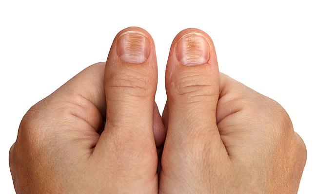 unghie patologie