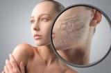 Omeopatia, come proteggere la pelle dal freddo? Parola all'esperto