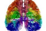 Mini cervello in 3D, uguale a quello umano