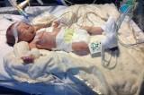 Jack Stevens, 15 mesi e quattro operazioni a cuore aperto