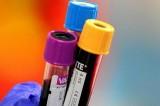 Usa, gay potranno donare sangue. Ma dopo 12 mesi di astinenza sessuale
